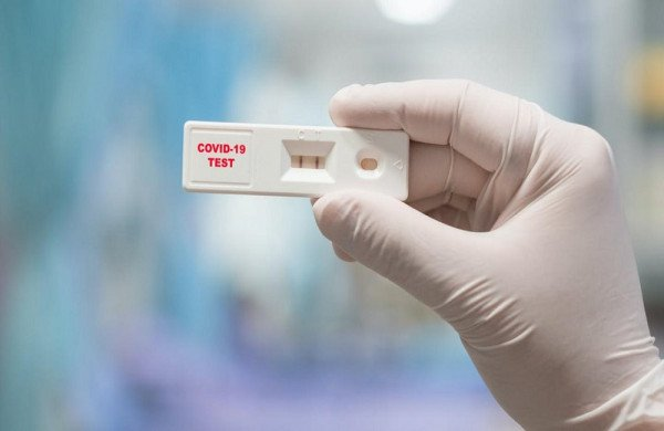 Κορονοϊός: 139 κρούσματα σε 4.437 rapid test εντοπίστηκαν από τις ΚΟΜΥ του ΕΟΔΥ