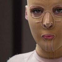 Животът ѝ без лице най-сетне приключи. Тя свали маската, която носеше 2,5 години и светът ахна