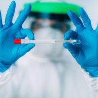 Измама ли е PCR тестът?
