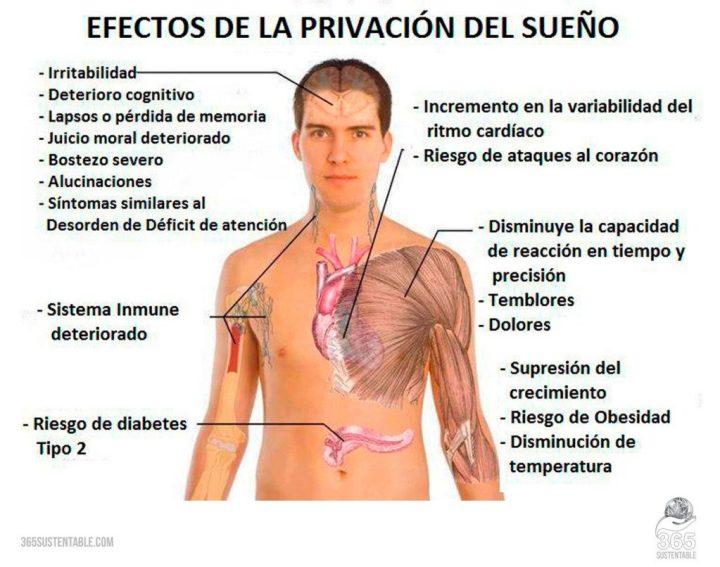 cuerpo-privacion-sueño