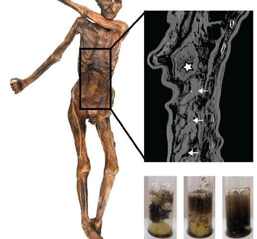 La última comida de 5,300 años de Iceman revela una dieta notablemente rica en grasas