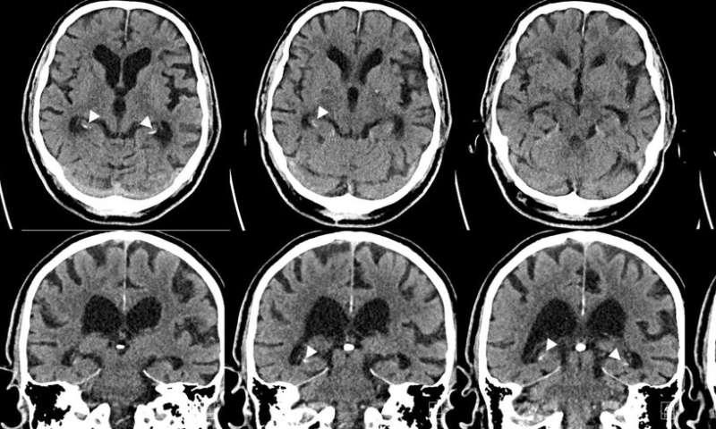 Fumo e diabete legati a calcificazioni cerebrali