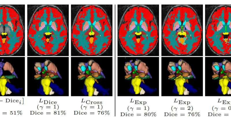 Helping to improve medical image analysis with deep learning