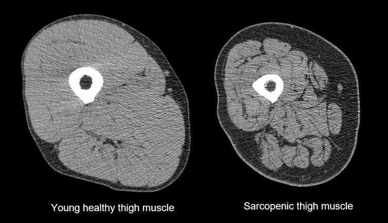 """La """"sarcopenia"""" condizione di deperimento muscolare è ormai una malattia riconosciuta.  Ma possiamo proteggerci tutti"""