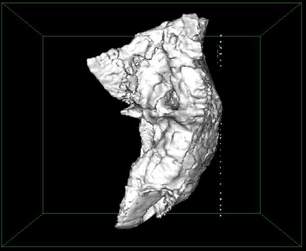 Mac にて CT や MRI データ(DICOM)を STL 形式にする手順