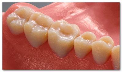 16ミクロンの積層ピッチで造形できる歯科用の3Dプリンタが実用に足るレベルな件