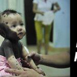 Menina nasce com manchas pretas no corpo