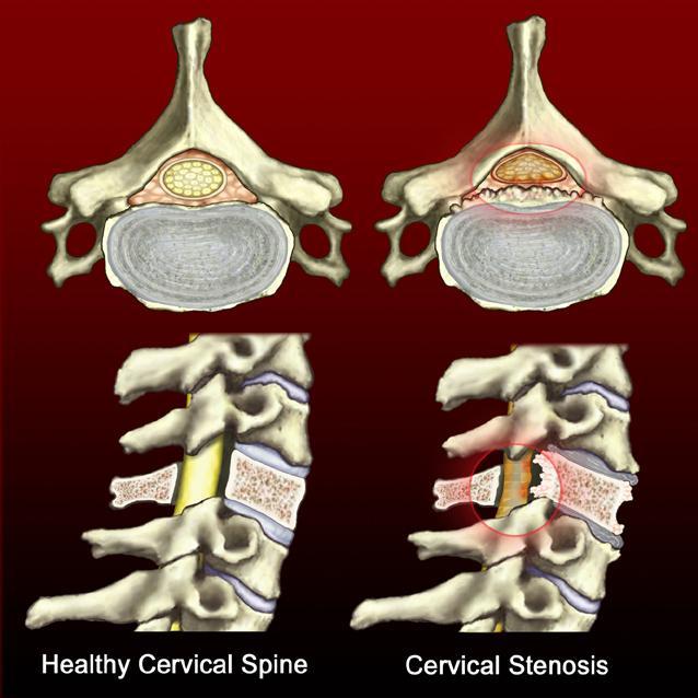 stenosis-cedars-sinai-edu