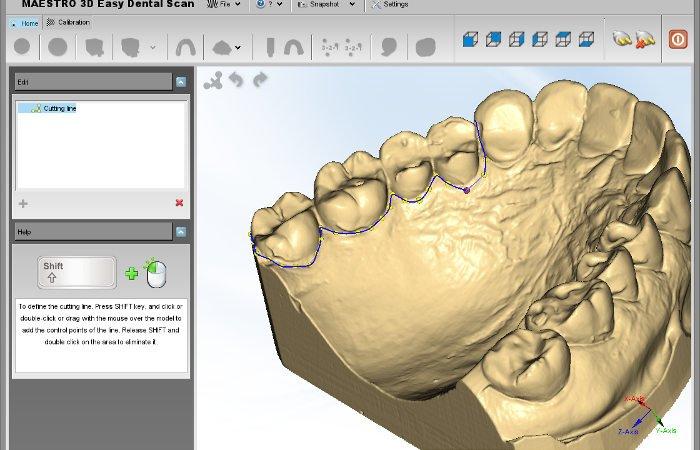 maestro ortho studio dental 3D software