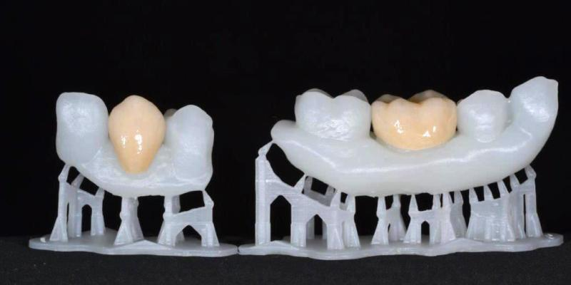 3d printed dental crown