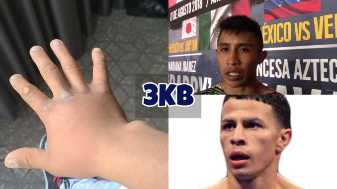 Julio Cesar Martinez' injured hand; Julio Cesar Martinez reacts to win; McWilliams Arroyo image