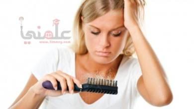 صورة إليكى 4 وصفات للتخلص من قشرة الشعر وتقصفه وتساقطه