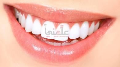 صورة إليكى 8 طرق طبيعية لتبييض أسنانك بشكل رائع