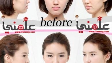 صورة تعالة واتفرج واستغرب عمليات التجميل فى كوريا