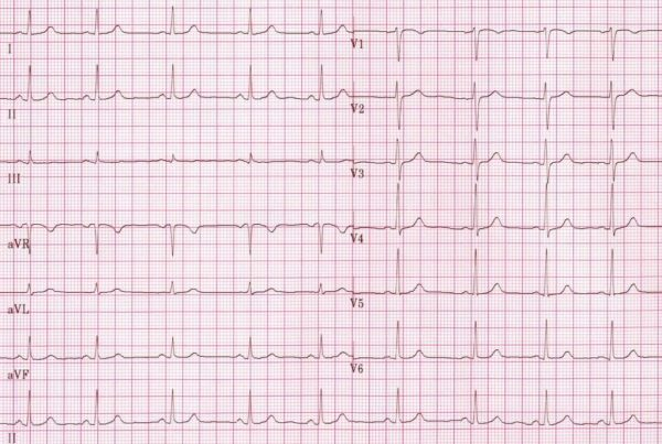 Pacemaker Essentials: How to Interpret a Pacemaker ECG ...