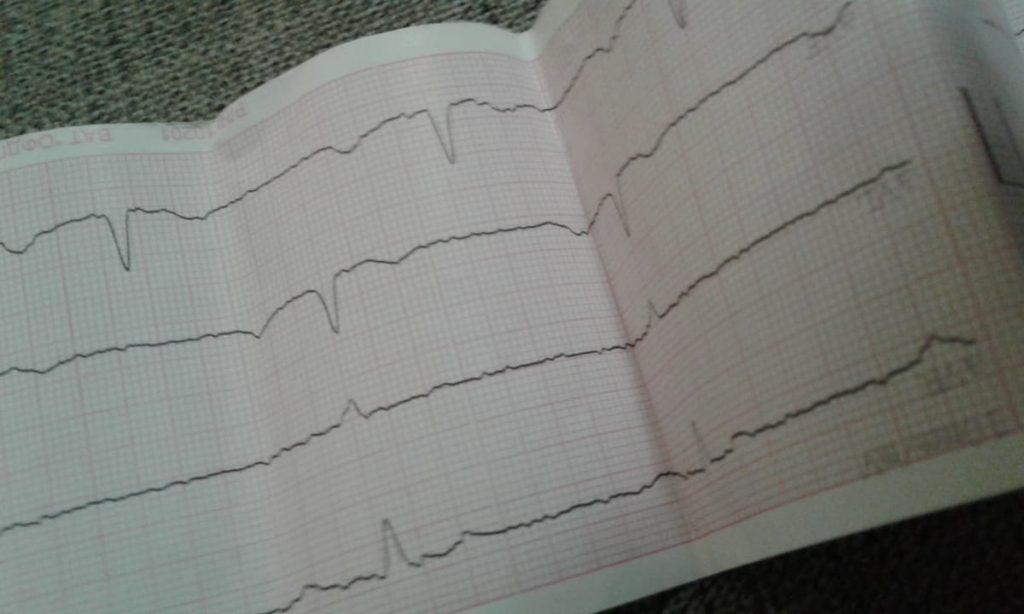 Нічна електрокардіограма