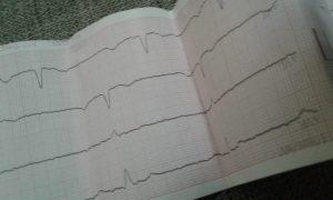 Електрокардіограма