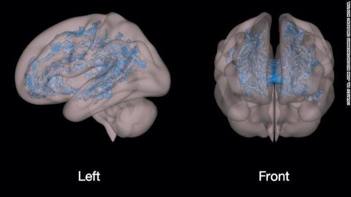 Мозок дитини, що бавиться на планшеті чи телефоні