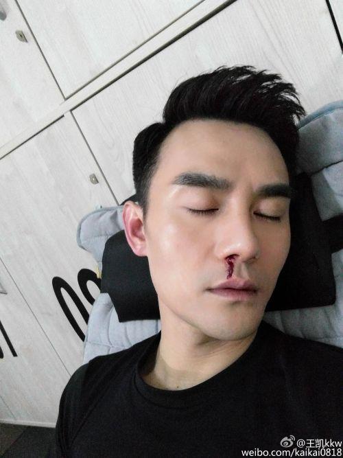 Wang Kai with nosebleed