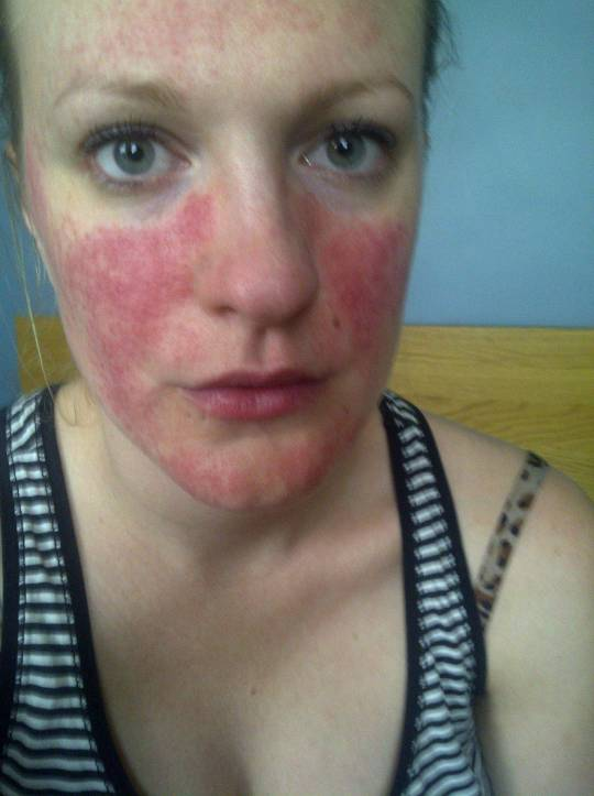 what does rosacea look like?