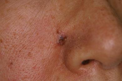 基底細胞皮膚がん