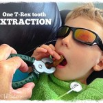 T-Rex tooth extraction