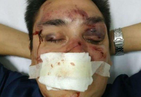 Barras de Racing desfiguraron a periodista partidario