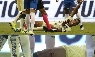 Ex-Barcelona star Giovani dos Santos suffers gruesome injury as his leg is torn open in horrible challenge (Photos)