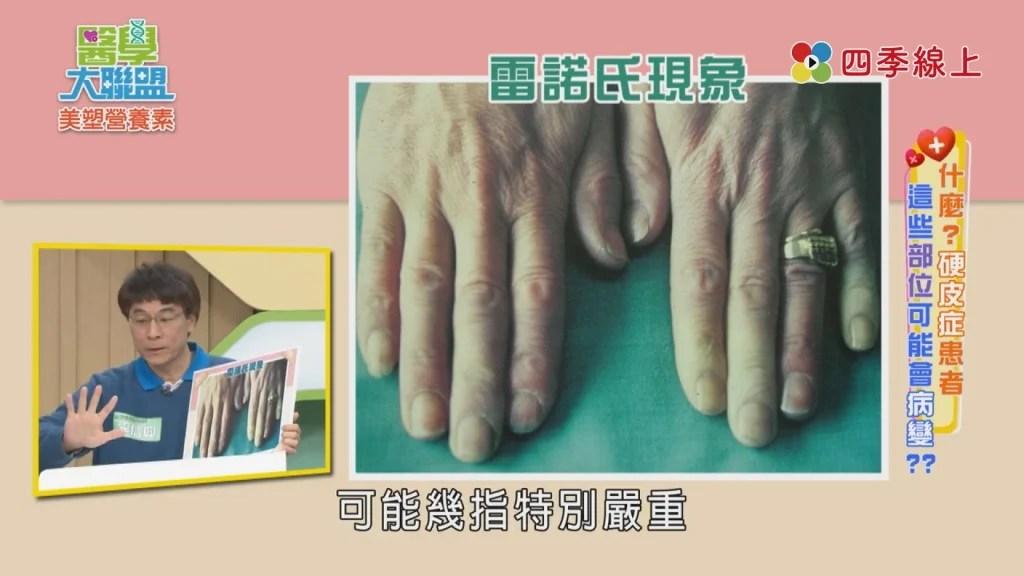 《醫學大聯盟》認識硬皮癥及早治療 20至40歲女性加倍小心|娛樂 - 四季線上4gTV