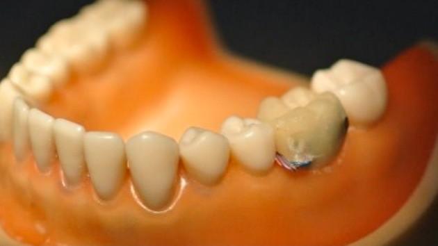 Умный зуб