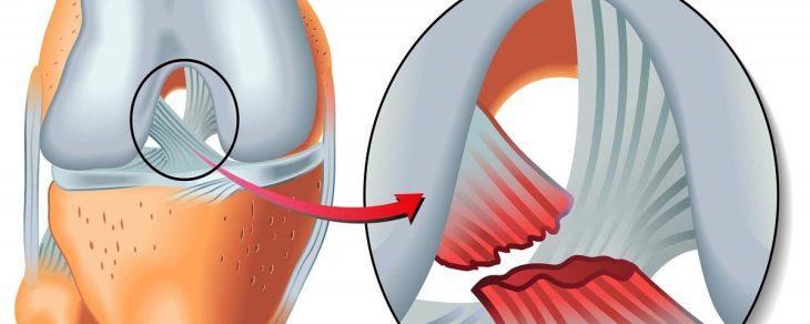 искусственные связки суставов
