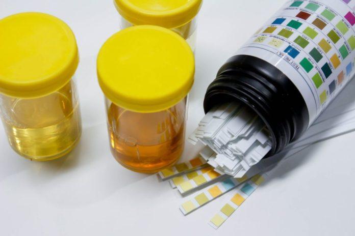 Skala von pH-Werten neben Urin
