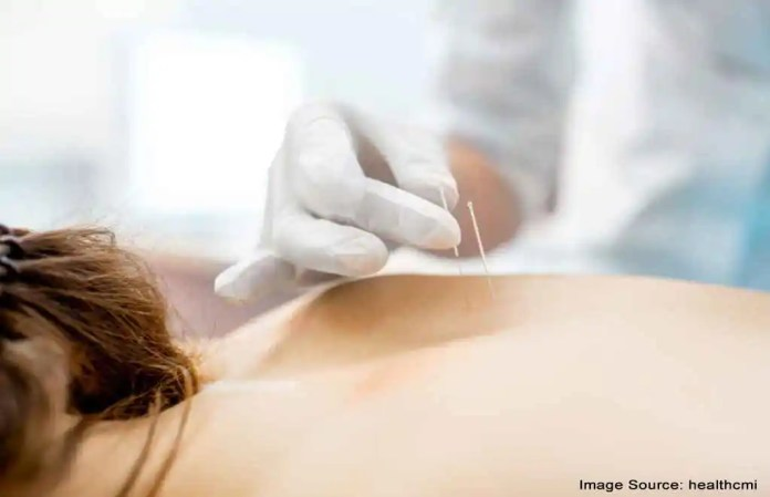 Acupuncture is the best alternative of medicine
