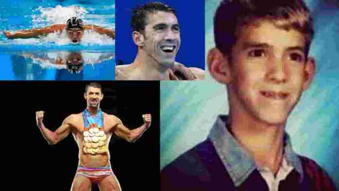 Michael Phelps - Famous athletes with Marfan Syndrome.jpg