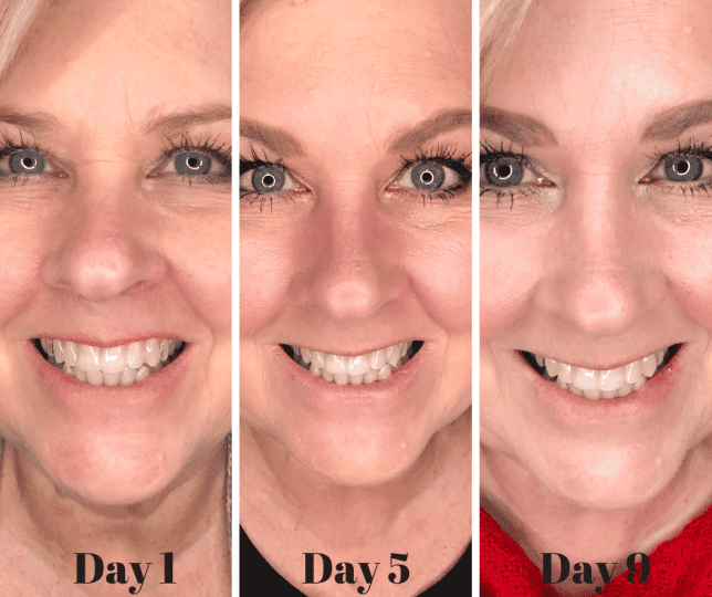 50 IS NOT OLD | HOW TO GET A BRIGHTER WHITER SMILE | FASHION OVER 40