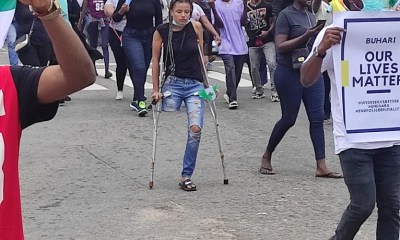- IMG 20201018 090036 1 - She Lost Her Leg from Stray Bullet, See What Protesters Did to Her Today