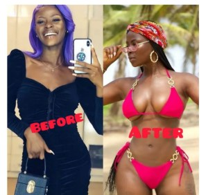 - Screenshot 20210715 080836 1 300x282 - See Before And After Pictures Of Celebrities That Did Surgery
