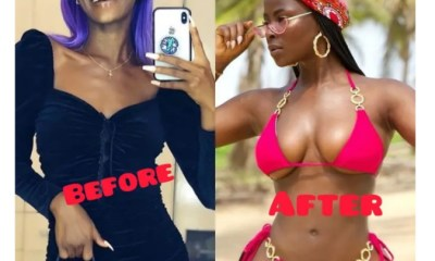 - Screenshot 20210715 080836 1 - See Before And After Pictures Of Celebrities That Did Surgery