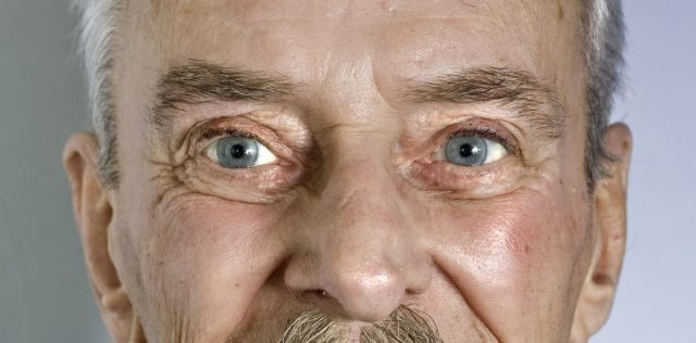 age related eye problems