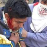 """SALTA: """"represión con balas de plomo a trabajadores del Ingenio El Tabacal"""""""