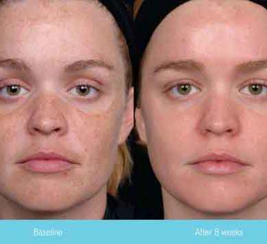 Glowing, Clear and Blemish-Free Skin for the 30+ Bride – Part 1
