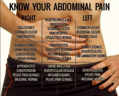 USMLE #wizard - medxclusive: Do YOU know your Abdominal Pain?