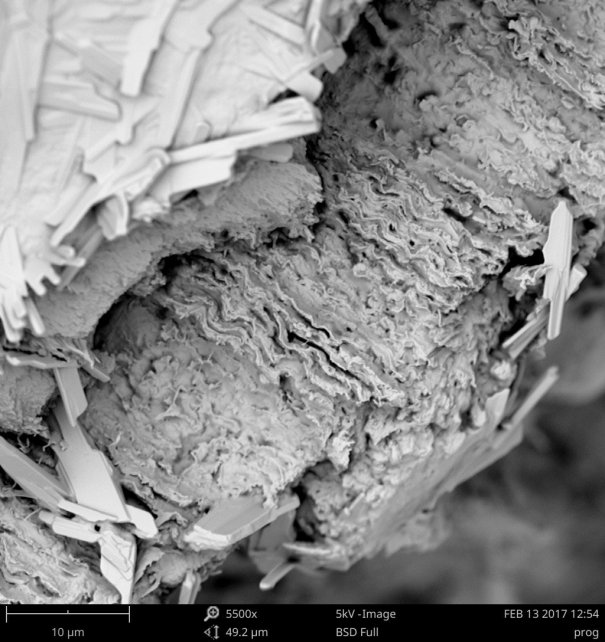 microscope – Insects
