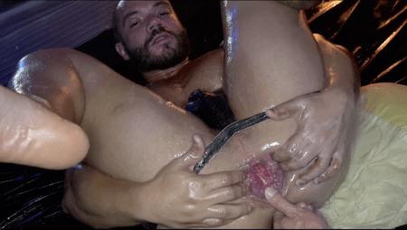 Andy Star dilaceração anal Thiago Romero