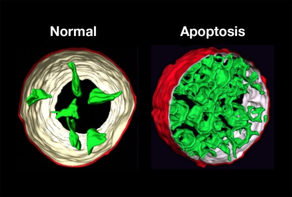 Science Visualized • APOPTOSIS: Programmed Cell Death ...