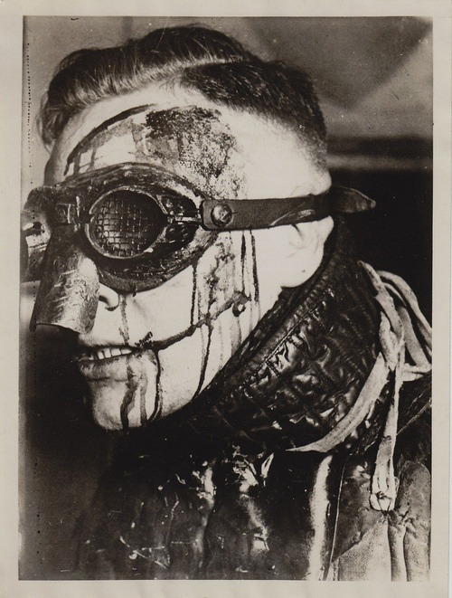 """demented-diary: """" German student with dueling scars. Also called """"bragging scars,"""" dueling scars were popular among upper class German fencing students. They were seen as a """"badge of honor"""" and sometimes even irritated to make them more extreme in..."""