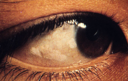 Eye In Vitamin A Deficiency Recall That Prevents Squamous Metaplasia