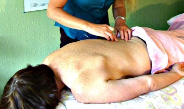 How Acupuncture Can Help Treat Your Medical Problems