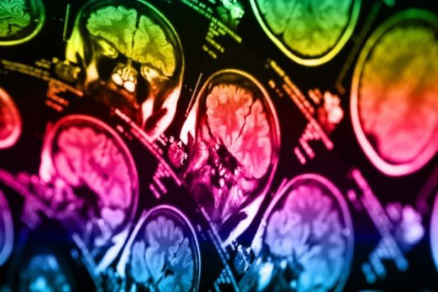 Understanding The 7 Important Symptoms Of A Brain Tumor