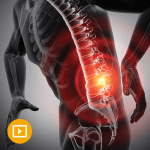 Comprehensive Review of Pain Medicine